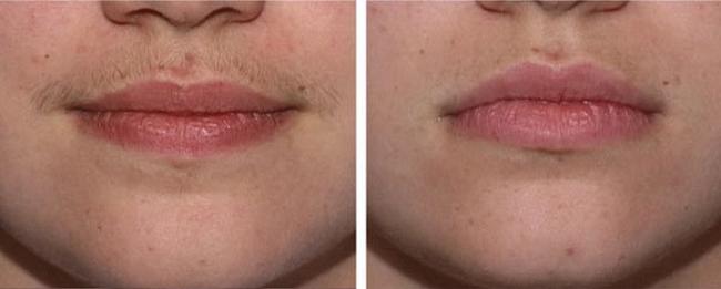 Фотоэпиляция: фото до и после