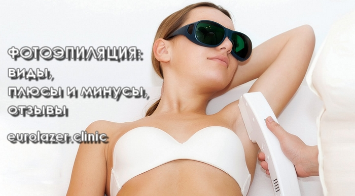 fotoepilyatsiya-vidy
