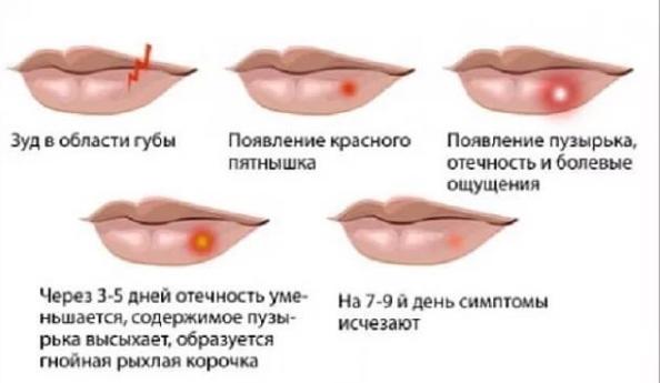 gerpes-simptomy