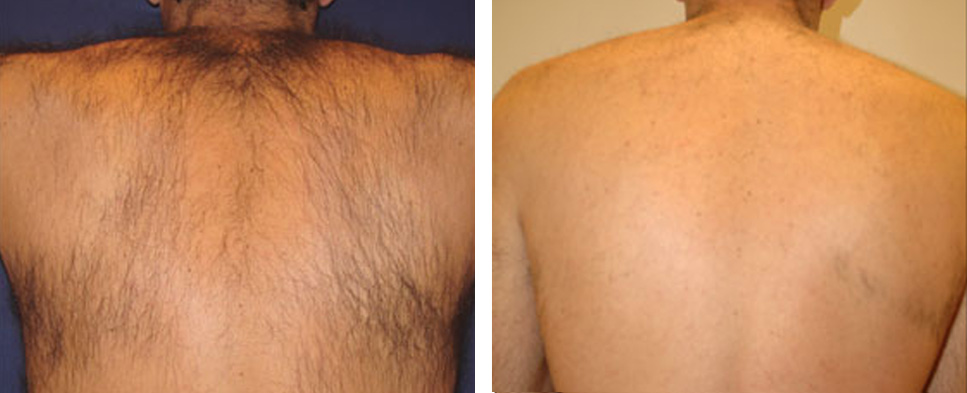 Фотоэпиляция спины у мужчин: фото до и после