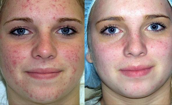 озонотерапия лица: результаты до и после