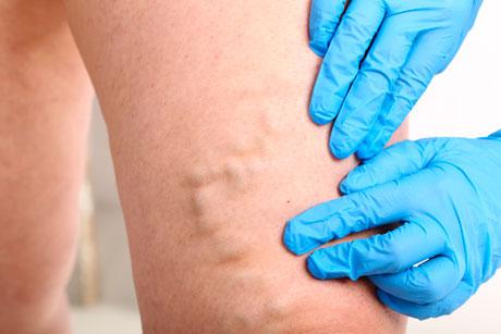 Тромбофлебит: диагностика и лечение